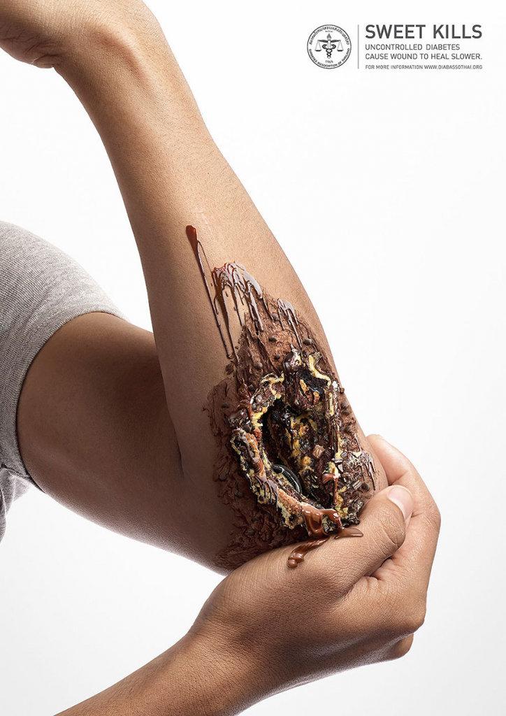 Những bức ảnh ấn tượng về đồ ngọt và biến chứng đáng sợ của tiểu đường